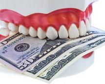 Kiek kainuoja dantų implantai?